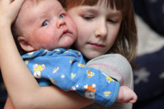 The girl embraces her sick brother with eczema